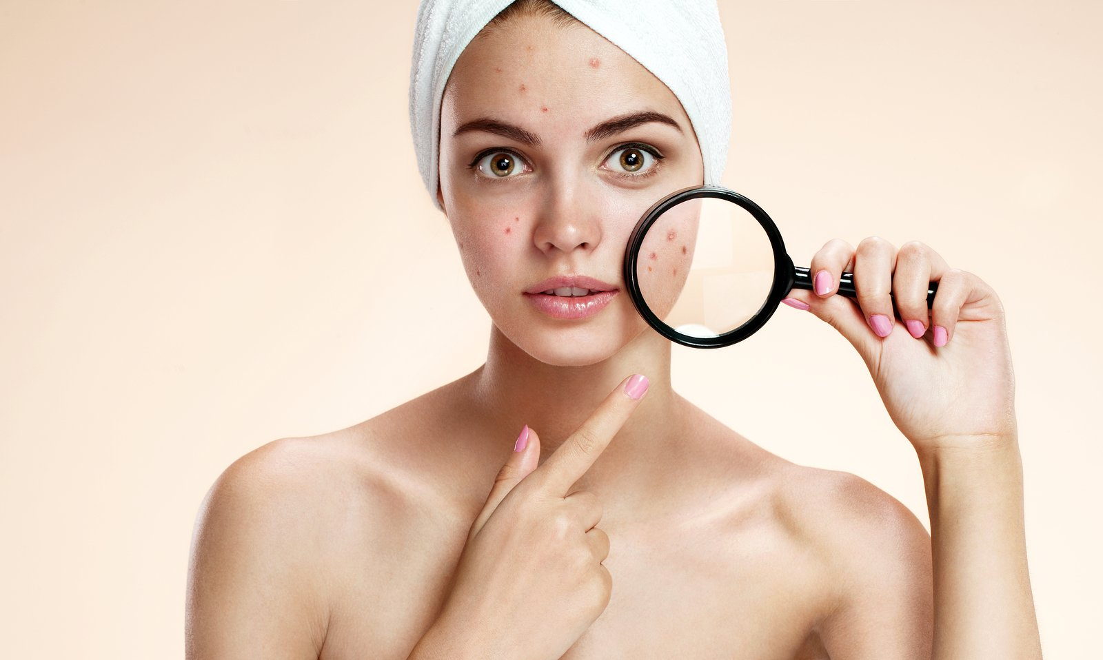 The Difference Between 5 Prescribed Acne Treatments